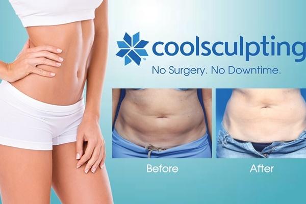 Hãy cẩn thận khi giảm mỡ không phẫu thuật CoolSculpting tại nhà